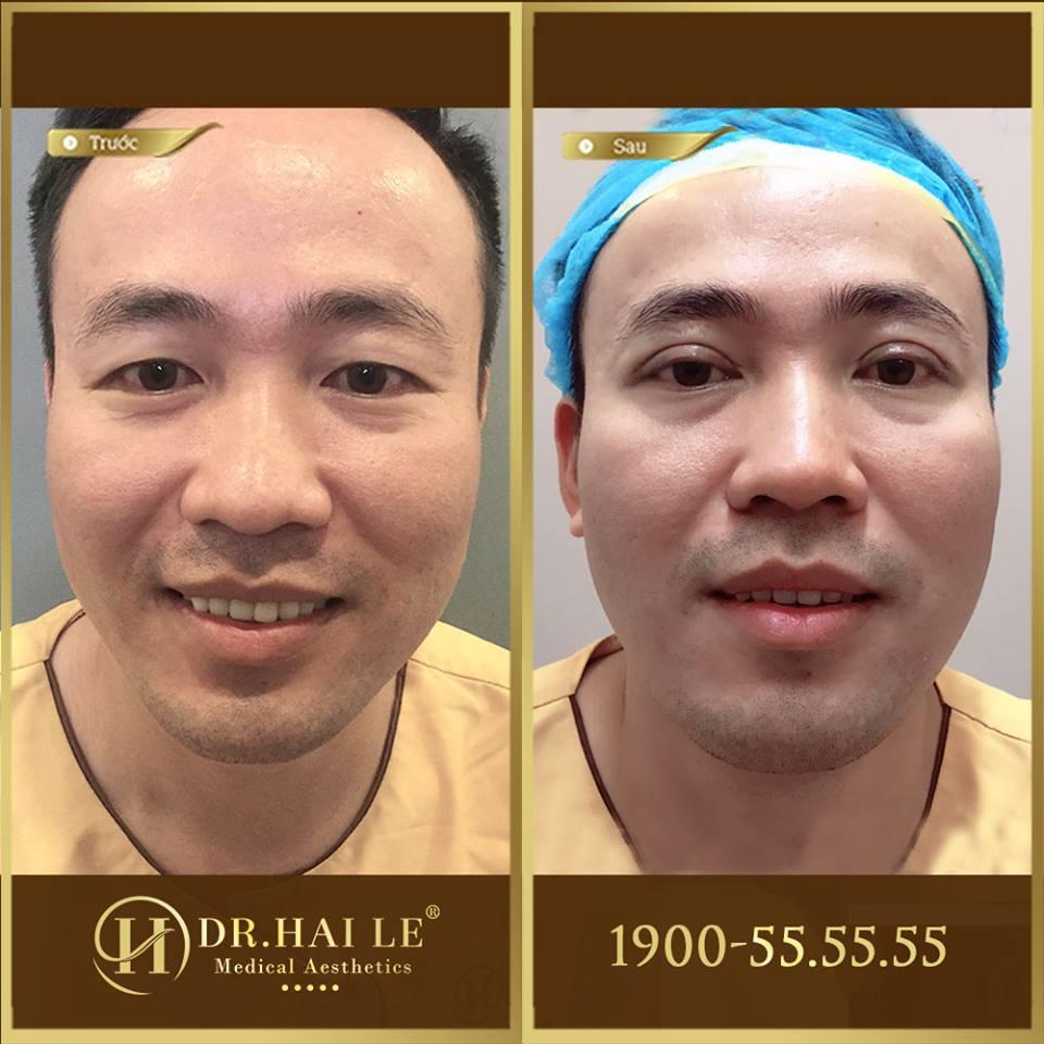 Hình ảnh trước và sau khi cắt mí
