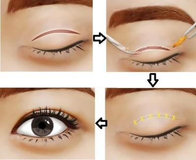 Cắt mí mắt bị hỏng có sửa lại được không-3