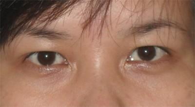 lấy mỡ mí mắt chống sụp mí 2
