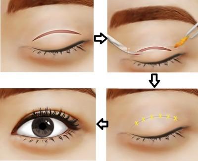 sửa mắt bị trợn hỏng sau phẫu thuật 1