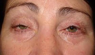 sửa mắt bị trợn hỏng sau phẫu thuật