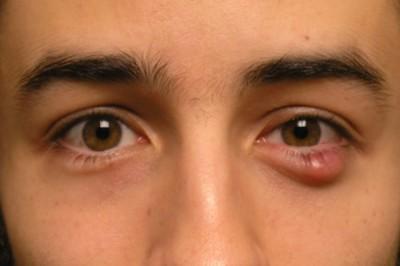 Đôi mắt đang tiết lộ điều gì về sức khỏe 1