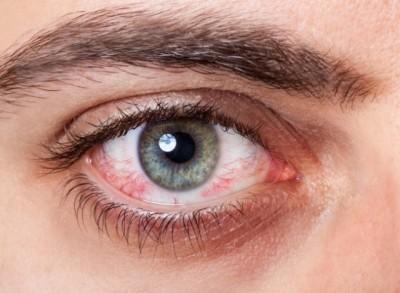 Đôi mắt đang tiết lộ điều gì về sức khỏe 2