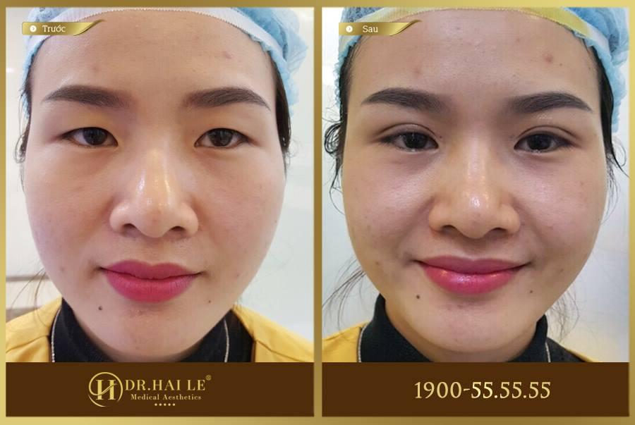 Hình ảnh khách hàng trước và sau khi thực hiện bấm mí