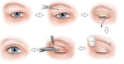 Cắt da thừa mí mắt, giải pháp hoàn hảo cho đôi mắt tươi trẻ