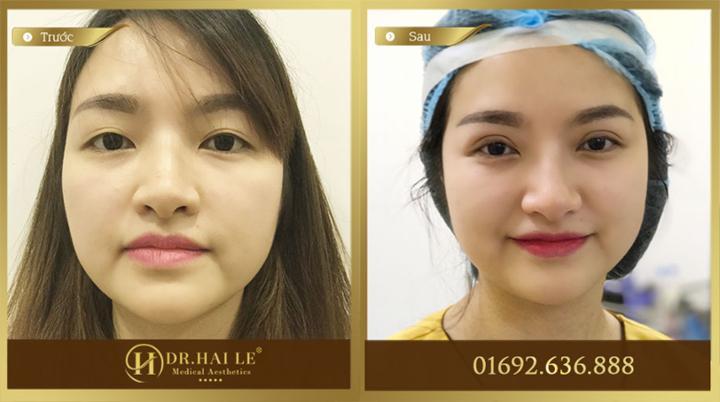 Kết quả chỉnh sửa mắt giúp khách hàng sở hữu đôi mắt phượng tuyệt đẹp