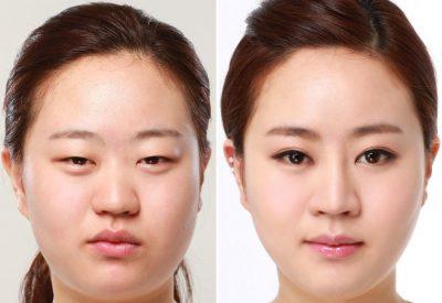 Chỉnh sửa đôi mắt sụp mí bằng công nghệ cắt mí hiện đại