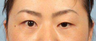 Tình trạng sụp mí mắt khiến đôi mắt mất thẩm mỹ
