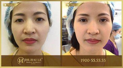 Kết quả sau khi thẩm mỹ sụp mí mắt tại Dr.Hải Lê