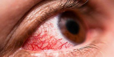 Bệnh đau mắt đỏ rất phổ biến