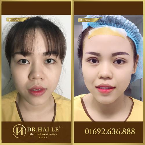 Kết quả sau khi mở góc mắt + cắt mí tại Dr.Hải Lê.