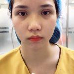 Hình ảnh sau khi cắt mí mắt Double Deep 5D Tại Dr Hải Lê