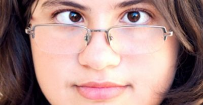 Mắt lác là mắt như thế nào?