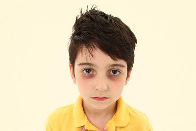 Trẻ em có cần đi khám mắt định kỳ hay không