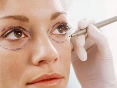 lấy mỡ mí mắt có phải phẫu thuật không