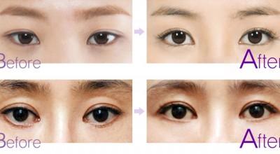 mở rộng đuôi mắt hết bao nhiêu tiền (2)