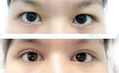 mở rộng khóe mắt 1