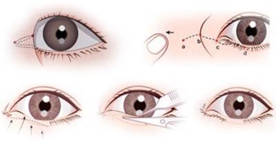 mở rộng khóe mắt