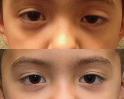 sụp mí mắt ở trẻ em