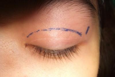 Cách xóa sẹo sau cắt mí 2