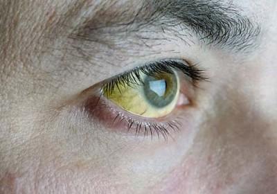 Đôi mắt đang tiết lộ điều gì về sức khỏe 5