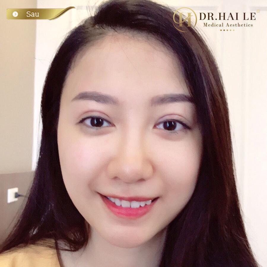 Hotgirl Minnie sau khi thực hiện cắt mí Mani Mini Deep 5D tại Dr.Hải Lê