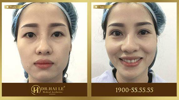 Khách hàng trước và sau khi thực hiện cắt mí Mani Mini Deep 5D tại Dr.Hải Lê