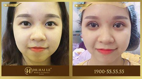 Hình ảnh khách hàng trước và sau khi thực hiện cắt mí mắt Mani Mini Deep 5D tại Dr.Hải Lê