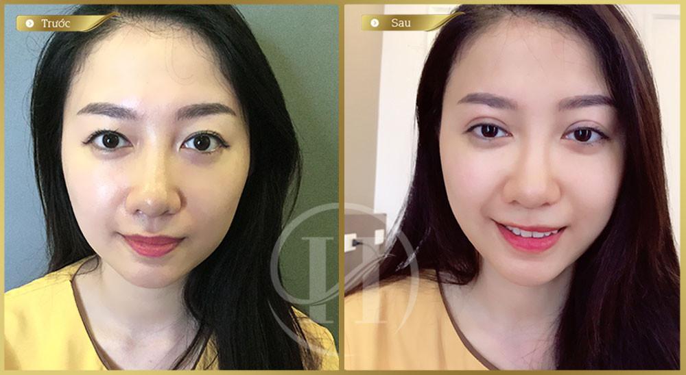 Khách hàng trước và sau khi thực hiện cắt mi Mani Mini Deep 5D tại Dr.Hải Lê