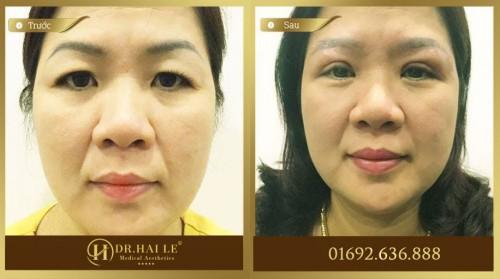 Khách hàng thực hiện cắt da thừa mí mắt tại Dr.Hải Lê