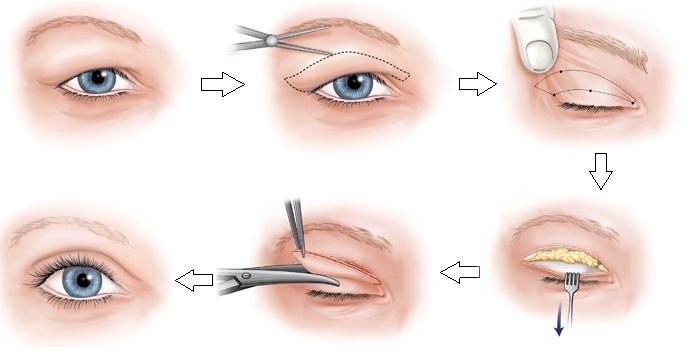 Cắt mí là giải pháp khắc phục nhược cơ mắt