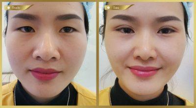 Cải thiện mắt hí cho chị gái chỉ sau 30 phút cắt mí Mani Mini Deep 5D