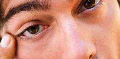 Nguyên nhân gây nên mụn mi mắt