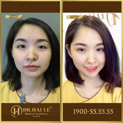 Kết quả cắt mí mắt tại Dr.Hải Lê