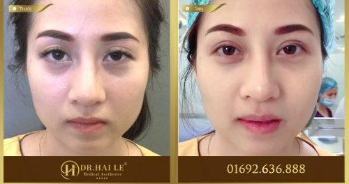 Lấy lại tuổi trẻ cho đôi mắt bằng phương pháp cắt mí mắt
