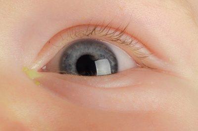 Nhiều gỉ nhèm ở mắt