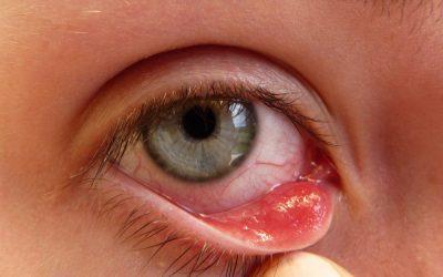 Mụn lẹo trong mắt, dấu hiệu ung thư biểu mô tuyến bã