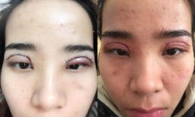 Các biểu hiện khi cắt mí mắt bị hỏng là như thế nào